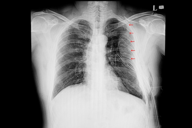 Film de radiographie pulmonaire d'un patient souffrant de fractures multiples des côtes
