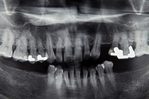Film radiographique dentaire pour concept de soins dentaires