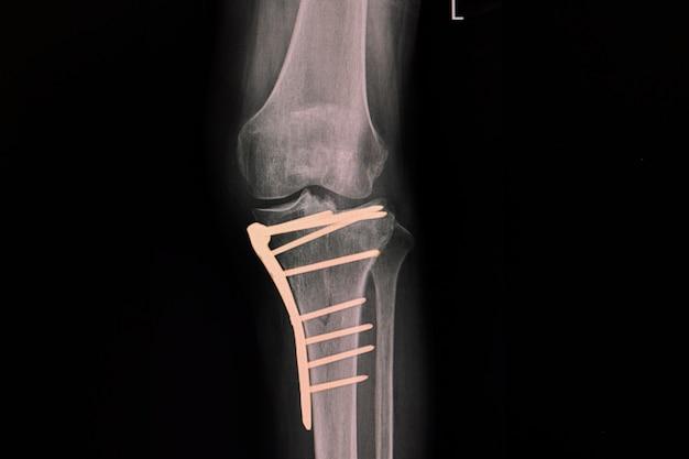 Film radiographique d'un genou d'un patient présentant une fracture du tibia proximal après fixation par plaque et vis