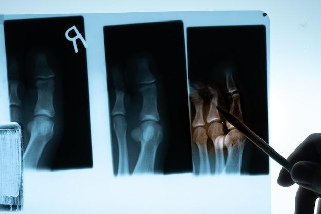 Film radiographique avec la main du docteur