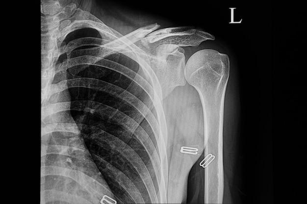 Film radiographique d'un patient fracturé à la clavicule gauche.