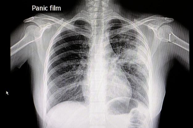 Film thoracique de pneumonie