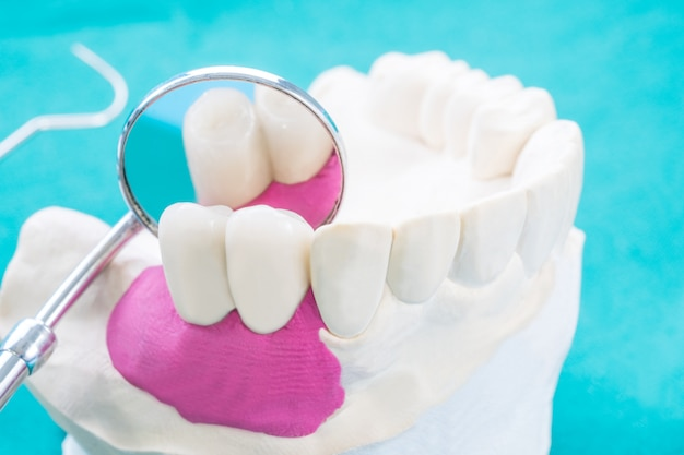 Fixez le support de dent modèle implan avec bridge fixe implan et couronne.