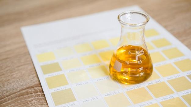 Un flacon avec de l'urine. concept d'analyses médicales. détermination du diagnostic par la couleur des urines. graphique avec des couleurs.