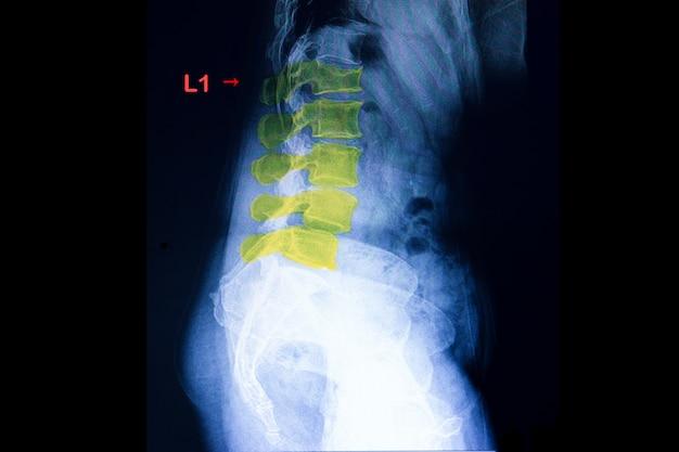 Fracture de compression de l'épine lambaire