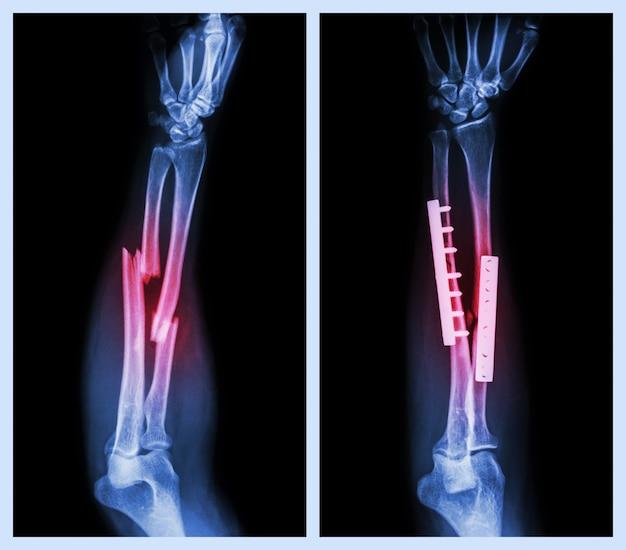 Fracture les deux os de l'avant-bras. il a été opéré et interne fixe avec plaque et vis