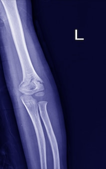 Fracture du coude radiographique.