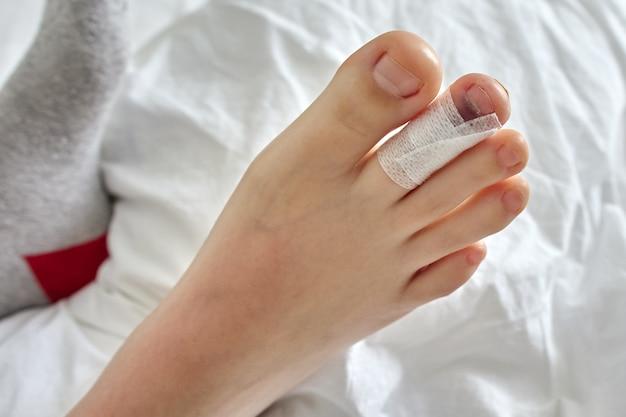 La fracture du doigt est un événement assuré pour les voyages assurés