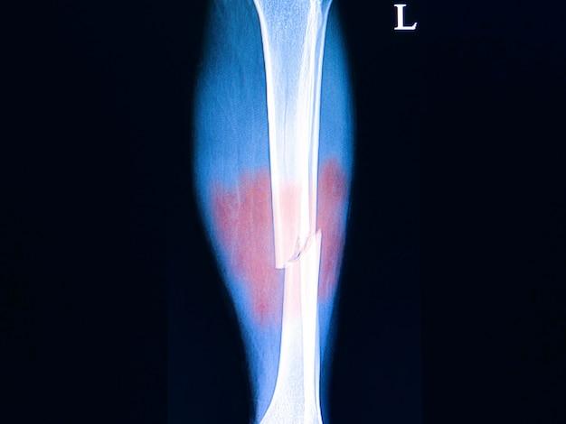 Fractures des os des jambes