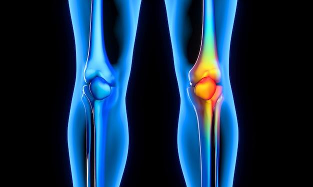 Genou douloureux dans l'image radiographique
