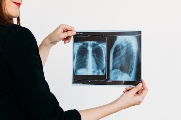 Girl holding photo poumons, rayons x, médecin, maladies et santé, bonne nutrition, corps