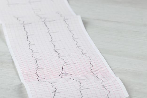 Graphique ecg d'électrocardiogramme cardiaque sur papier spécial. concept pour l'analyse cardiaque, l'assurance maladie, les antécédents médicaux, l'examen.