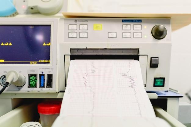 Graphique avec électrocardiogramme d'une femme enceinte lors d'un examen hospitalier.