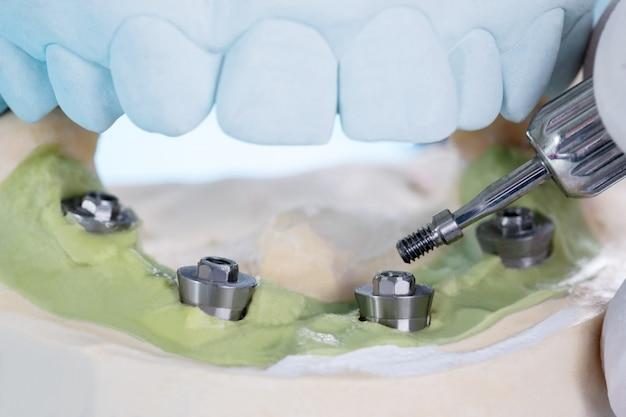 Gros plan / composants de pilier convertibles / pilier provisoire d'implant dentaire / implant de vis de pilier.