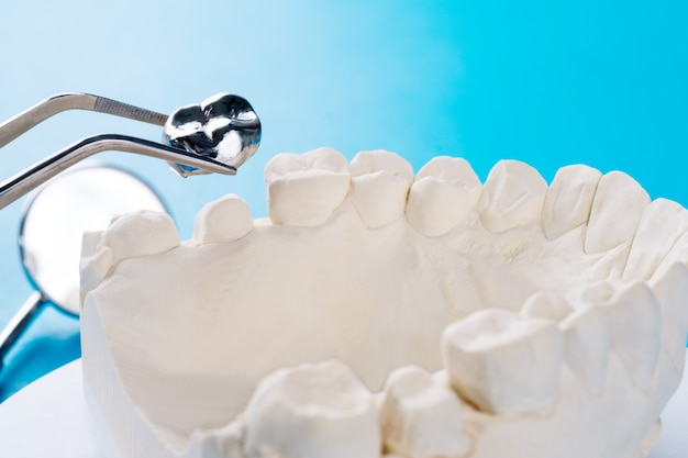 Gros plan du support de dent modèle implan avec bridge implan et couronne.