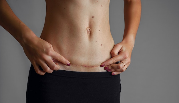 Gros plan du ventre de femme avec une cicatrice d'une taille de césarienne