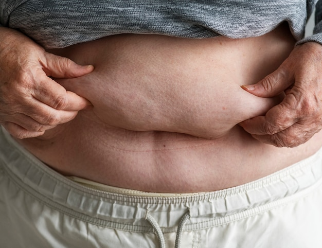 Gros plan d'une femme âgée obèse