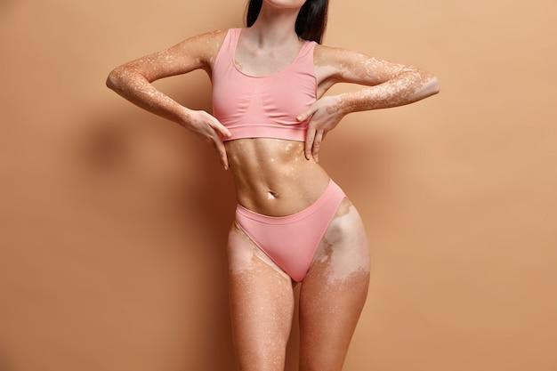Gros plan sur une femme mince avec une peau de vitiligo