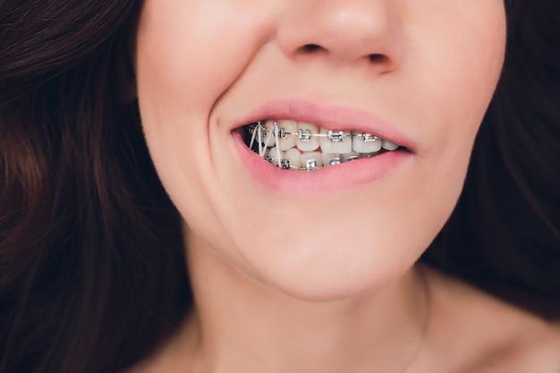 Gros plan, femme, porter, orthodontique, élastique, bande