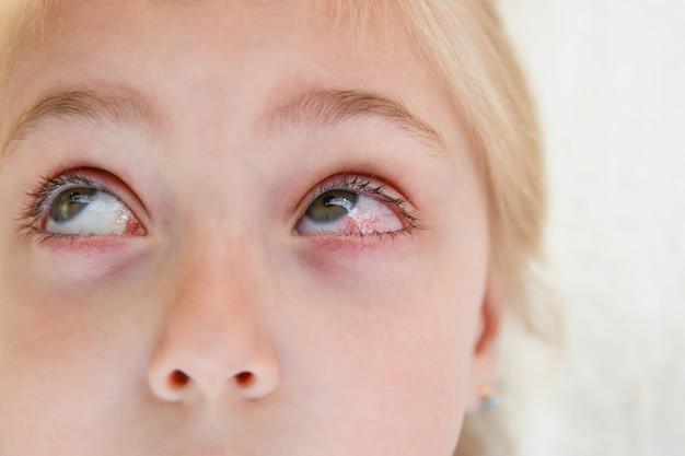 Gros plan d'une fille atteinte de conjonctivite.