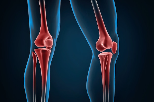 Gros plan sur les genoux blessés. illustration 3d. contient un chemin de détourage
