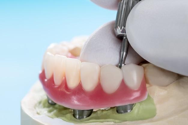 Gros plan / implants dentaires soutenus par prothèse sur fond bleu / vis conservée / restaurations implantaires.