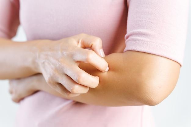Gros plan de jeune femme grattant les démangeaisons sur son bras. soins de santé et concept médical.