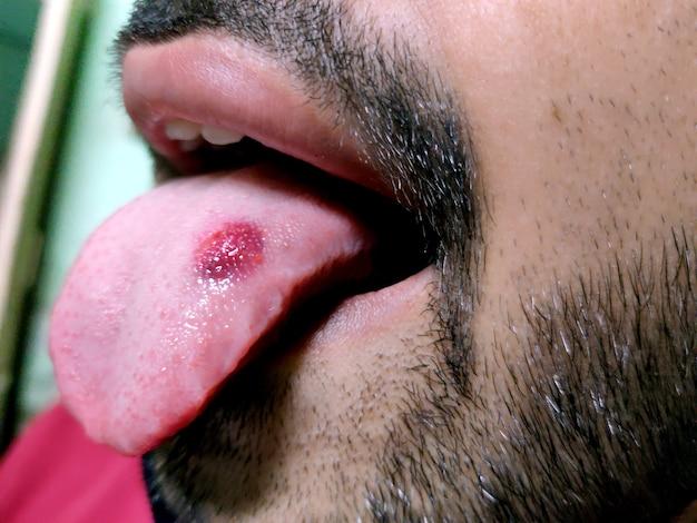 Un gros plan d'une langue malade dans laquelle une tache rouge brille. brûlure et inconfort de la langue