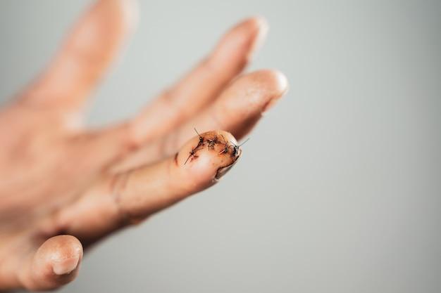 Gros plan de la main de l'homme avec une plaie suturée sur le doigt. blessé, santé et concept médical.