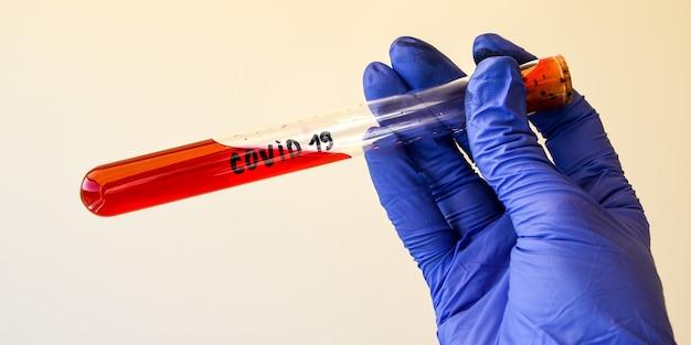 Gros plan de la main de microbiologiste avec des gants chirurgicaux tenant un résultat de test sanguin pour le coronavirus.