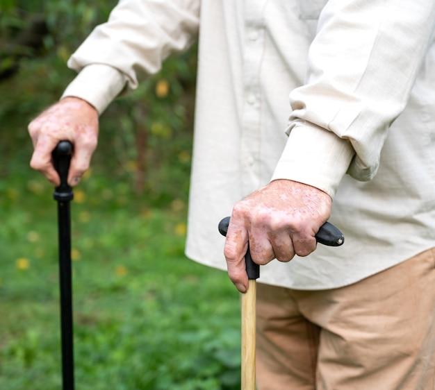 Gros plan des mains mâles avec des pigments de vitiligo à l'extérieur