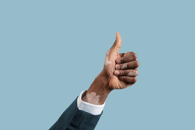 Gros plan des mains mâles avec des pigments de vitiligo isolés sur fond bleu.