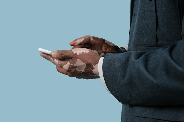 Gros plan des mains masculines avec des pigments de vitiligo isolés sur fond bleu. peau spéciale