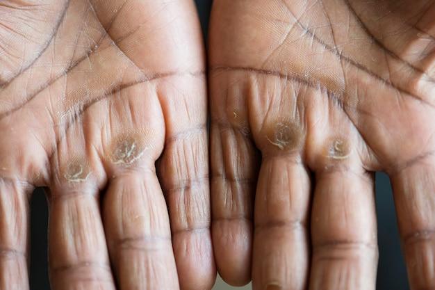 Gros plan de mains noires calleuses
