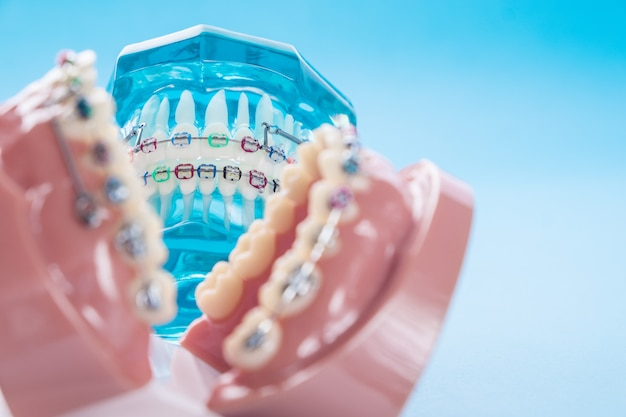 Gros plan modèle orthodontique et outil de dentiste sur le fond bleu