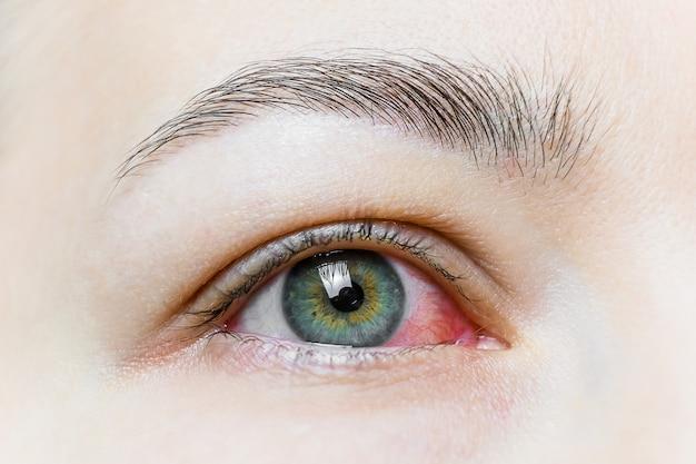 Gros plan d'un œil rouge sévère injecté de sang. blépharite virale, conjonctivite, adénovirus. oeil irrité ou infecté.