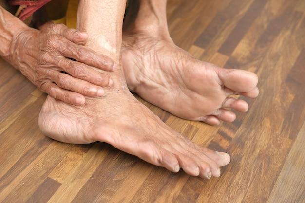 Gros plan sur les pieds des femmes âgées et massage des mains sur la tache de blessure