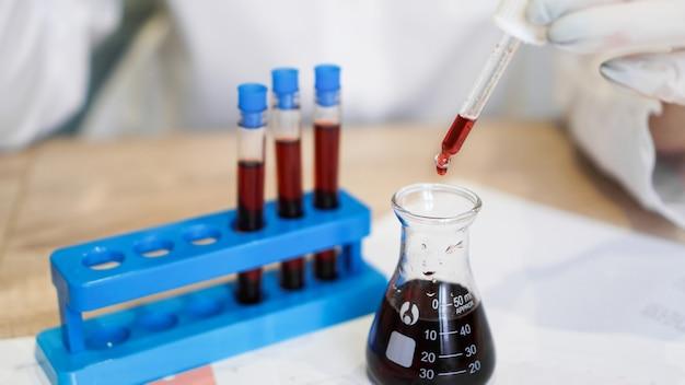 Gros plan d'une pipette laissant tomber un échantillon rouge dans un flacon de test. femme scientifique tenant une pipette. le concept d'analyses et de diagnostics