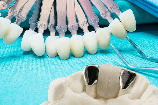 Gros plan / pont de maryland dentaire / équipement de couronne et de pont et restauration rapide de modèle.