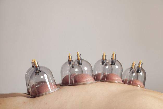 Gros plan pour plusieurs ventouses, thérapie médicale par ventouses sur le corps humain. docteur avec des tasses