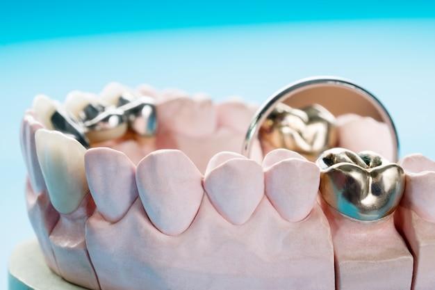 Gros plan / prosthodontie ou prothèse / couronne et bridge et restauration de modèle express fix.