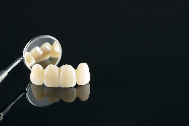 Gros plan / prosthodontie ou prothèse / couronne dentaire et équipement de dentisterie implantaire de bridge et restauration de modèle express fix.