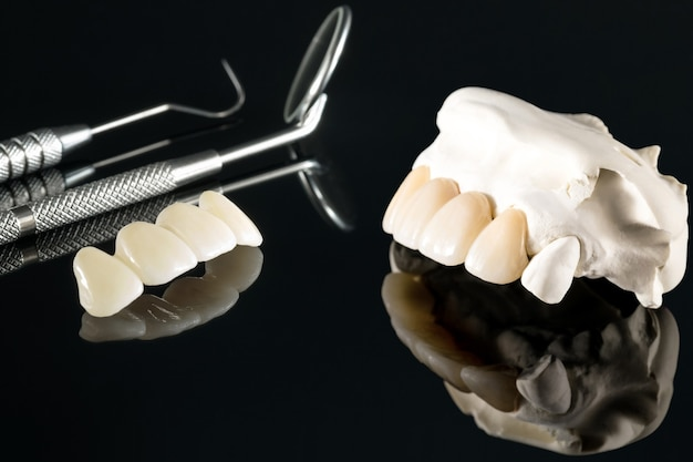 Gros plan / prosthodontie ou prothèse / couronne dentaire et matériel de dentisterie implantaire de bridge et modèle de restauration express fix.