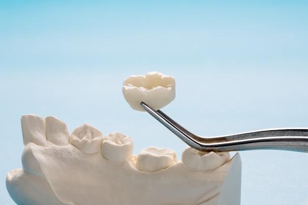 Gros plan / prosthodontie ou prothétique / équipement de couronne et de bridge à dents simples et restauration de modèle express fix.