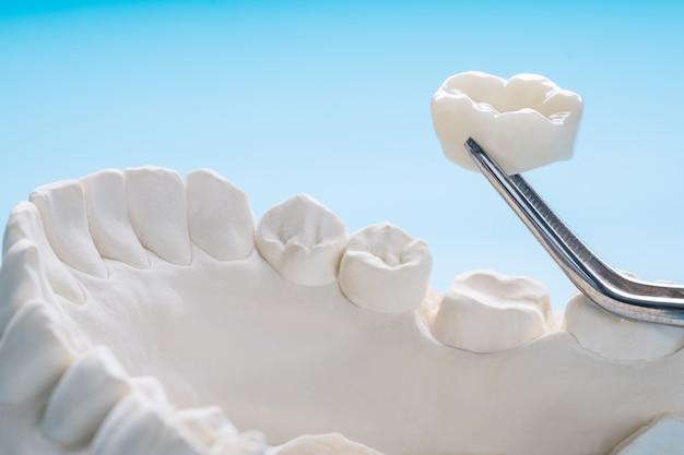 Gros plan / prosthodontie ou prothétique / modèle d'équipement de couronne et de pont à dents simples restauration à correction express.