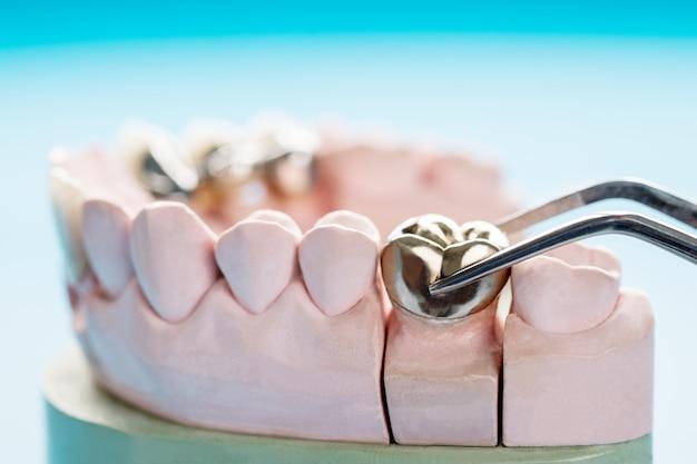 Gros plan de prothèses dentaires ou d'équipements prothétiques pour couronnes et ponts et restauration de modèle express fix.