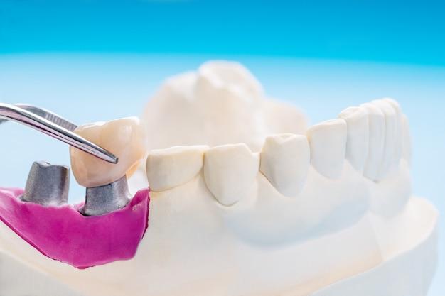 Gros plan / prothèses implantaires ou prothèses dentaires / couronne et bridge équipement de dentisterie implantaire et restauration de modèle express fix.