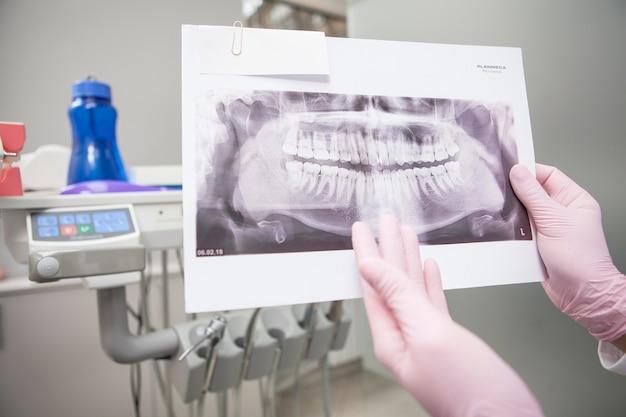 Gros plan de la radiographie de la mâchoire dans les mains d'un dentiste méconnaissable