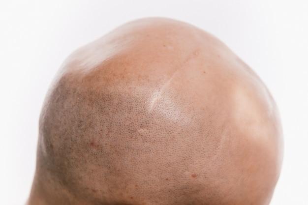 Gros plan de la tête d'un homme chauve après une opération d'oncologie