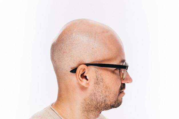 Gros plan de la tête d'un homme chauve après une opération d'oncologie.